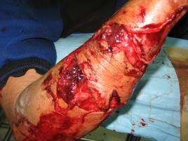 Dog attack injury